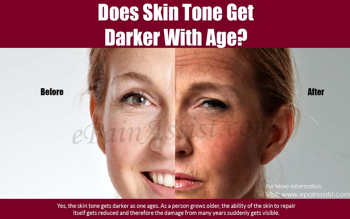 Does Skin Tone Get Darker with Age?
