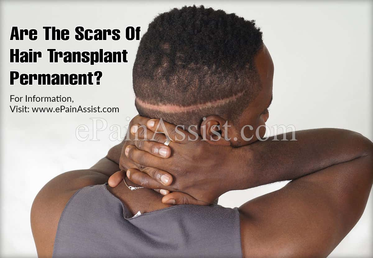 Are The Scars Of Hair Transplant Permanent?