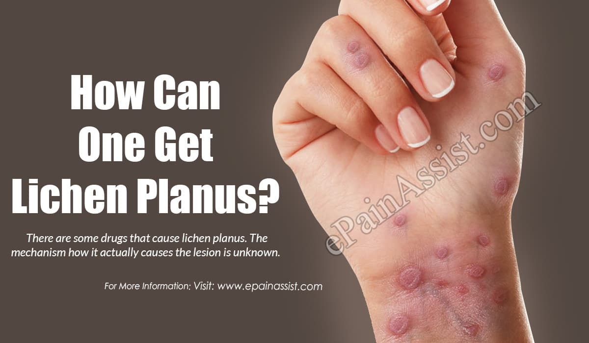 How Can One Get Lichen Planus?