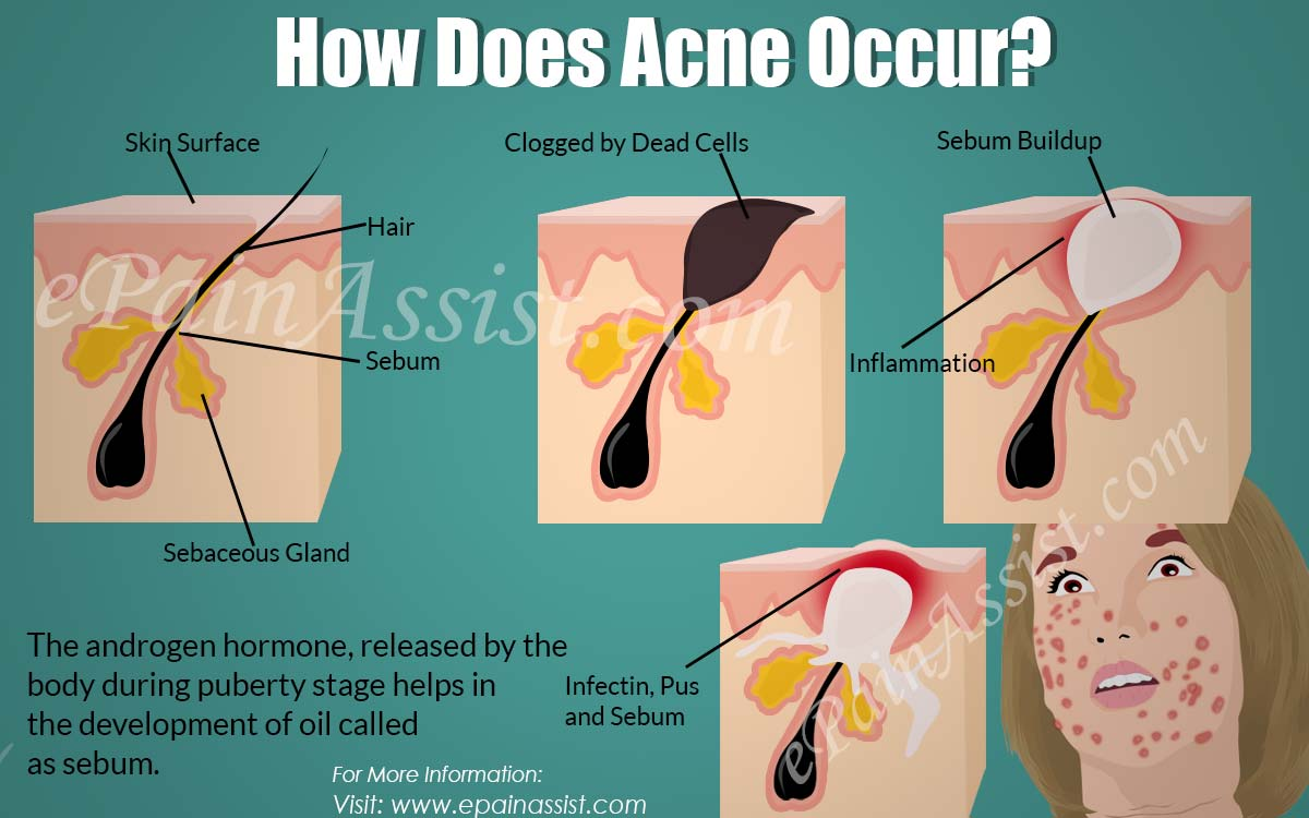How Does Acne Occur?
