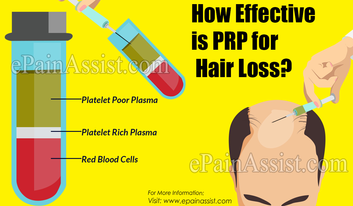 How Effective is PRP for Hair Loss?