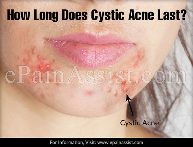 How Long Does Cystic Acne Last?