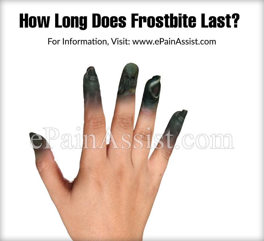 How Long Does Frostbite Last?