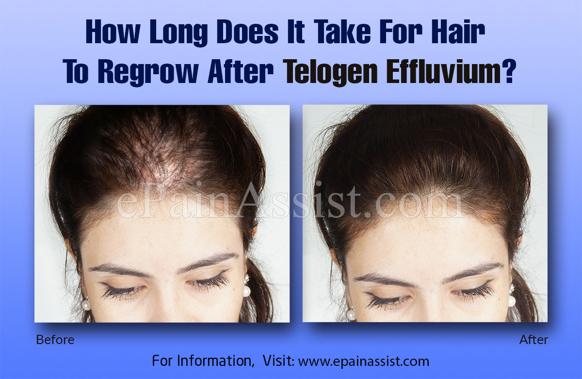 How Long Does It Take For Hair To Regrow After Telogen Effluvium