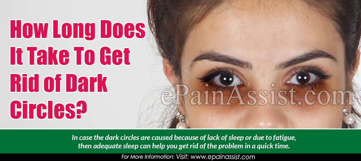 How Long Does It Take To Get Rid of Dark Circles?