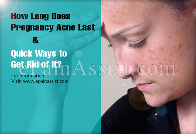 How Long Does Pregnancy Acne Last & Quick Ways to Get Rid of It?