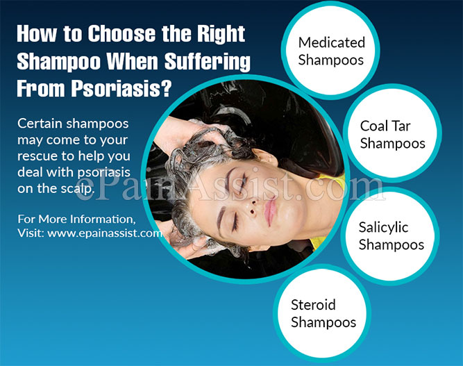 How to Choose the Right Shampoo When Suffering From Psoriasis?