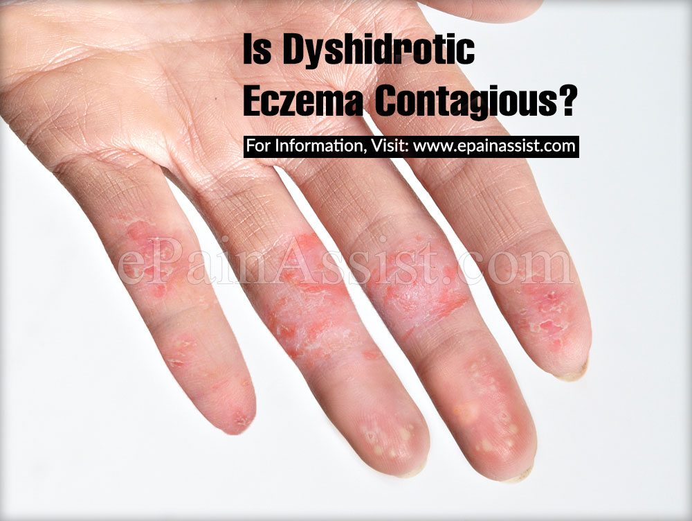 Is Dyshidrotic Eczema Contagious?