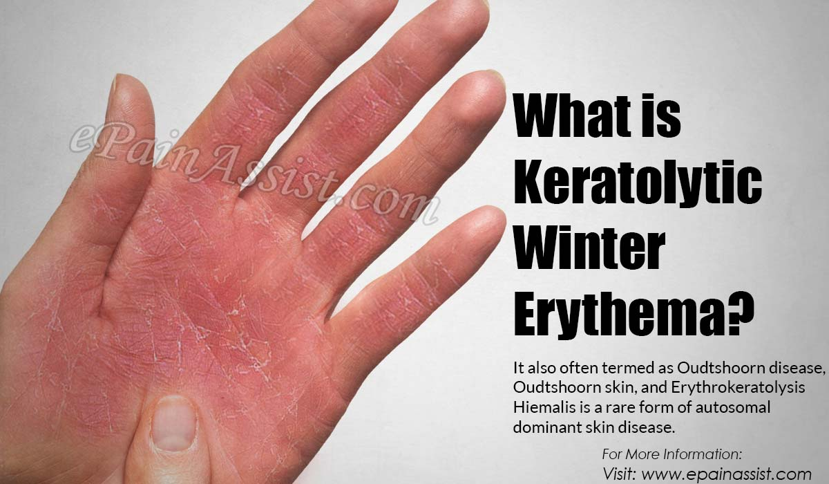 What is Keratolytic Winter Erythema?