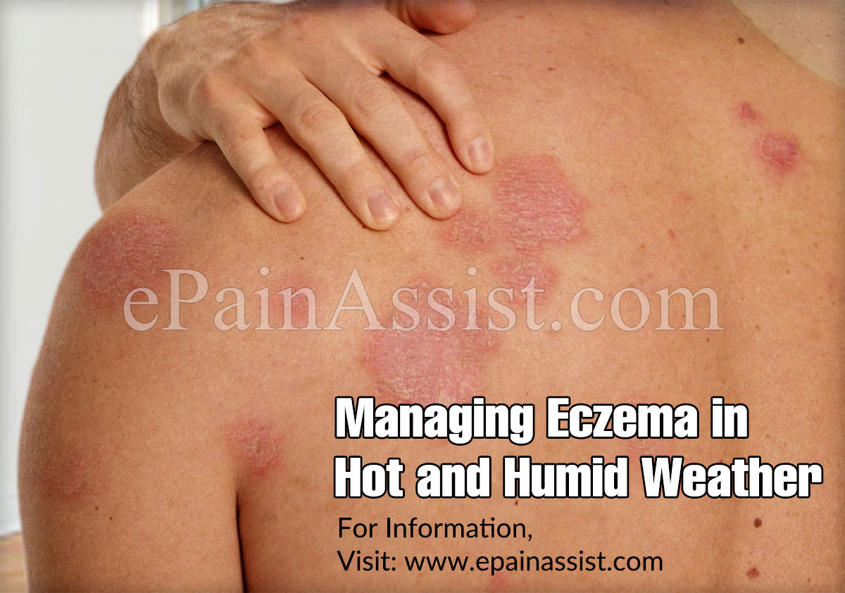 Managing Eczema in Hot and Humid Weather