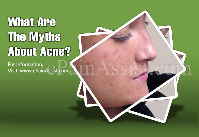 What Are The Myths About Acne?