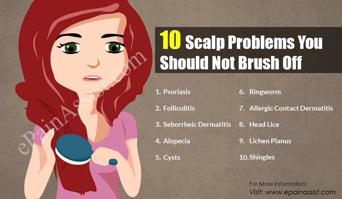 10 Scalp Problems You Should Not Brush Off