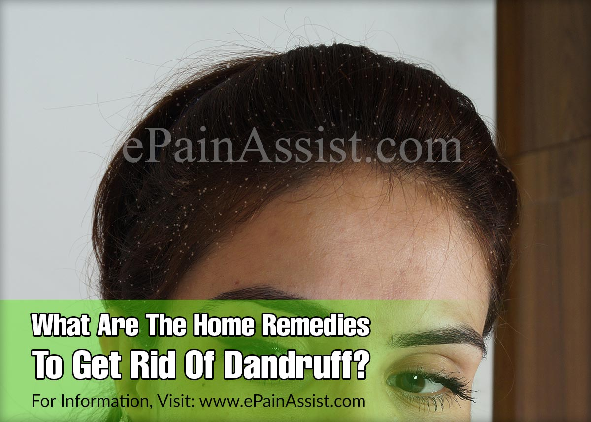 What Are The Home Remedies To Get Rid Of Dandruff?