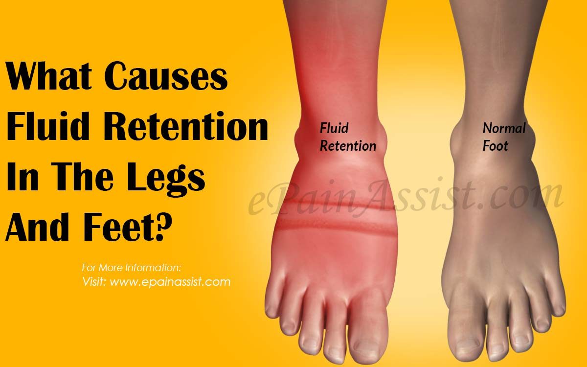 What Causes Fluid Retention In The Legs And Feet?