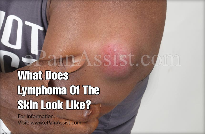 What Does Lymphoma Of The Skin Look Like?