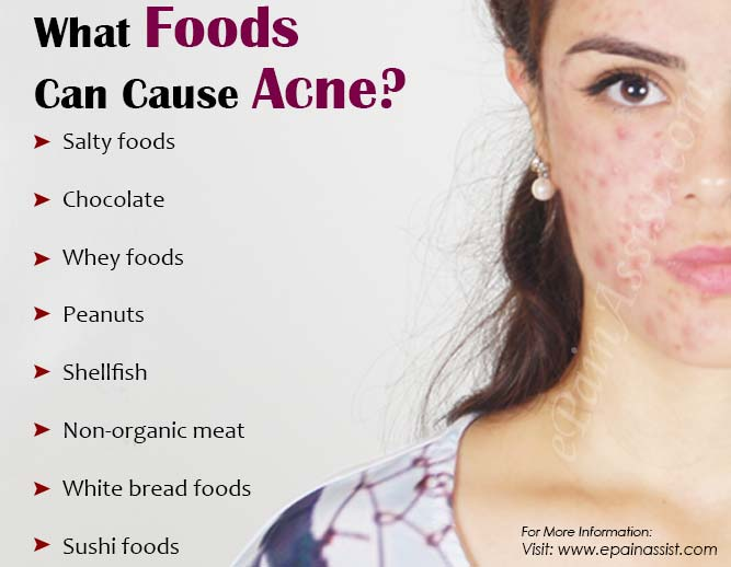 What Foods Can Cause Acne?