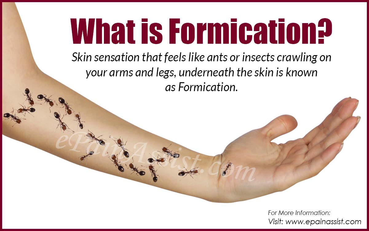 What is Formication or the Crawling Ant Sensation in Arms and Legs?