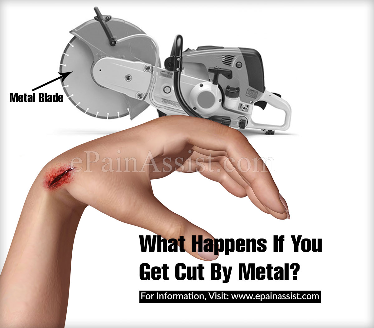 What Happens If You Get Cut By Metal?