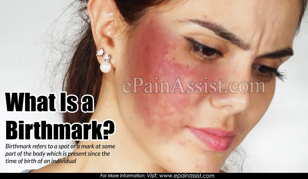 What Is a Birthmark?