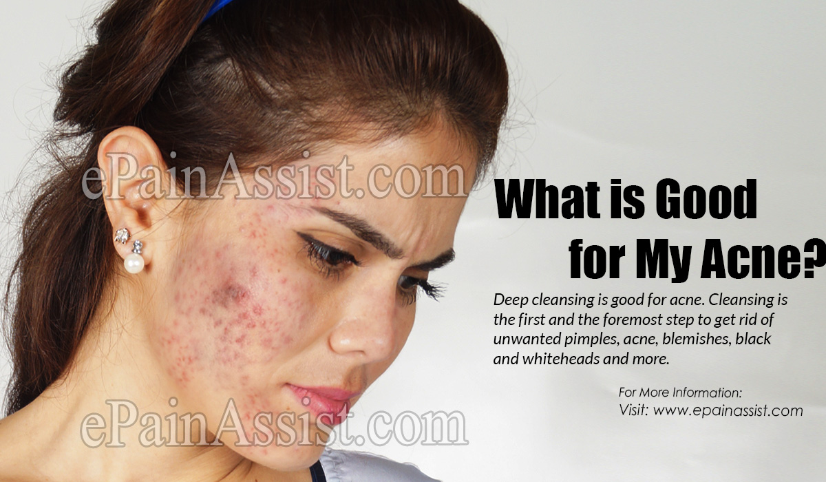 What is Good for My Acne?