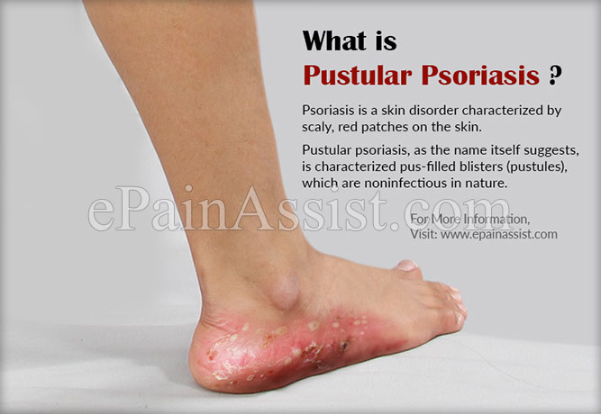 What is Pustular Psoriasis?
