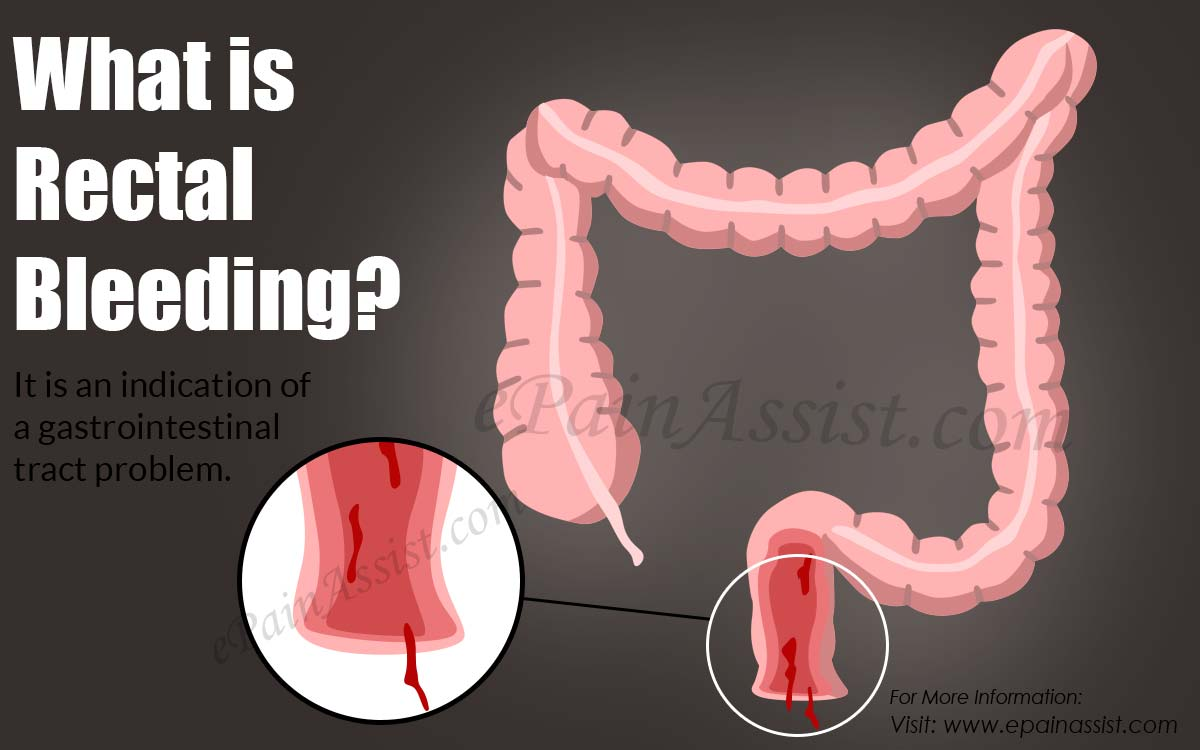 What is Rectal Bleeding?