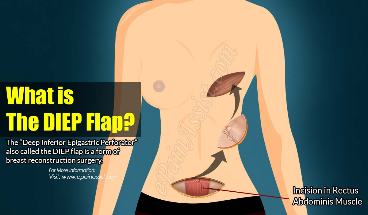 What is The DIEP Flap?