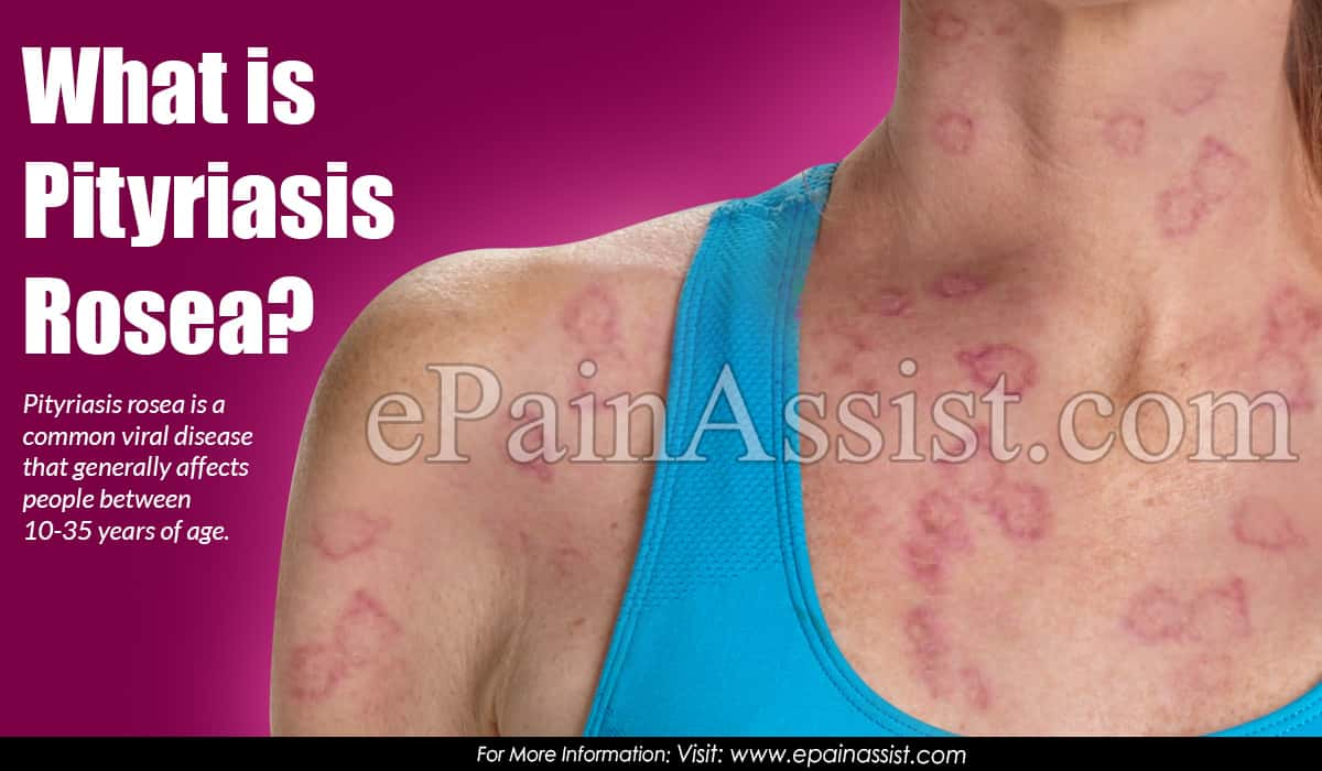 What is Pityriasis Rosea?