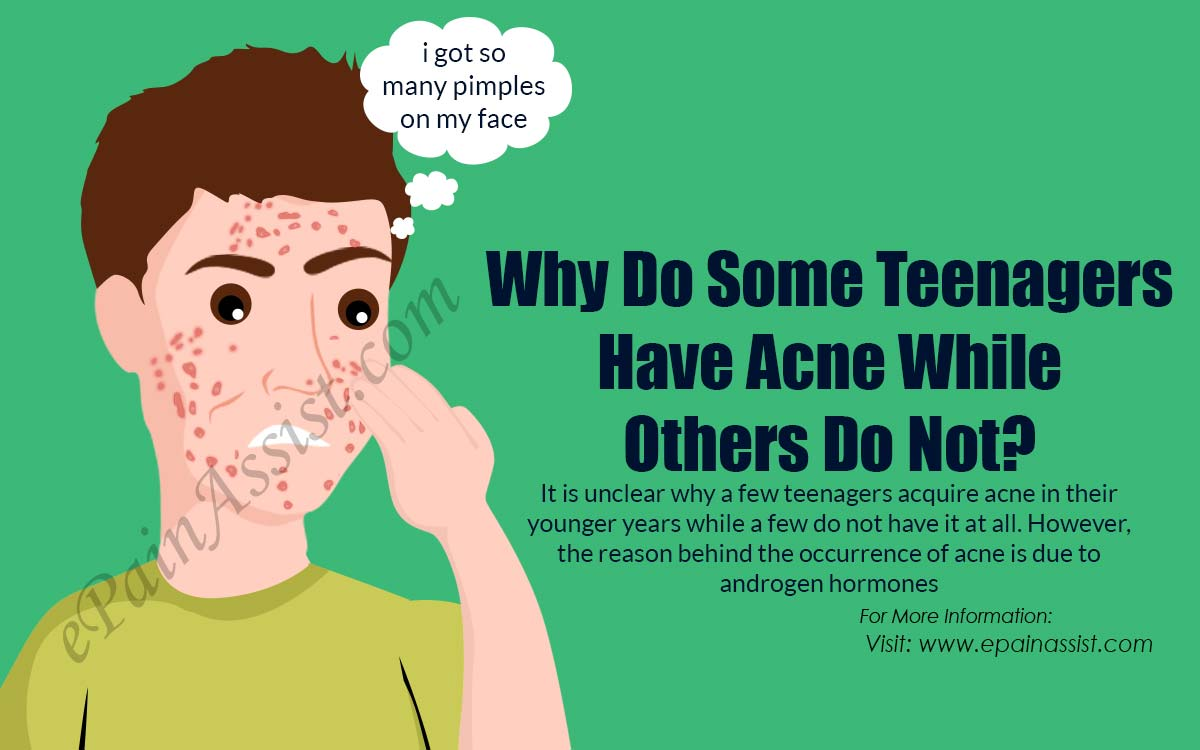 Why Do Some Teenagers Have Acne While Others Do Not?