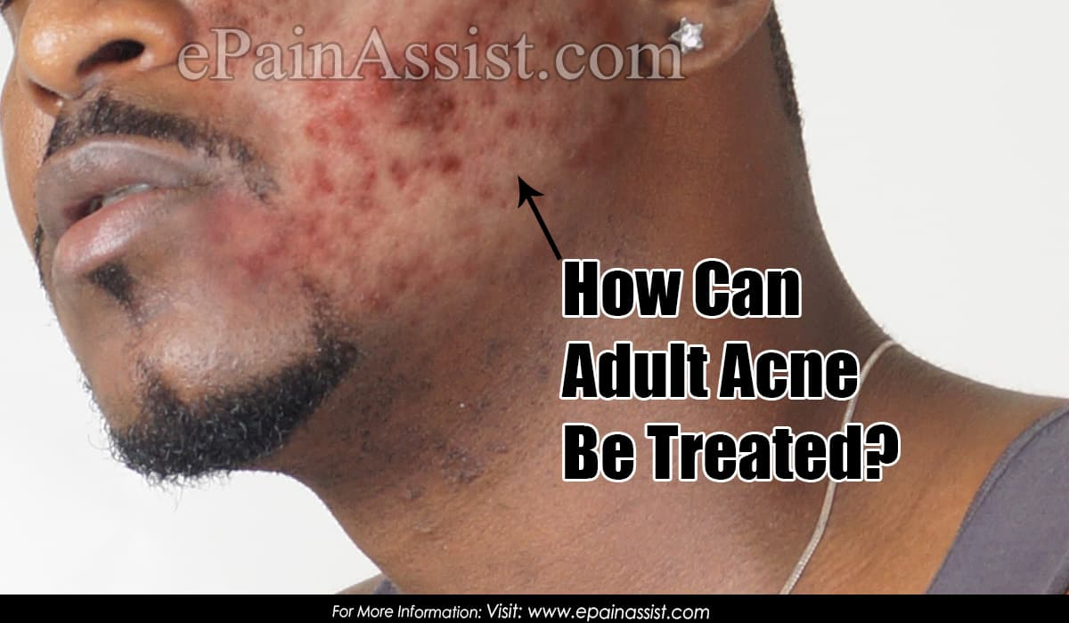 How Can Adult Acne Be Treated?
