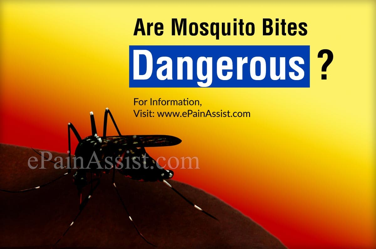 Are Mosquito Bites Dangerous?