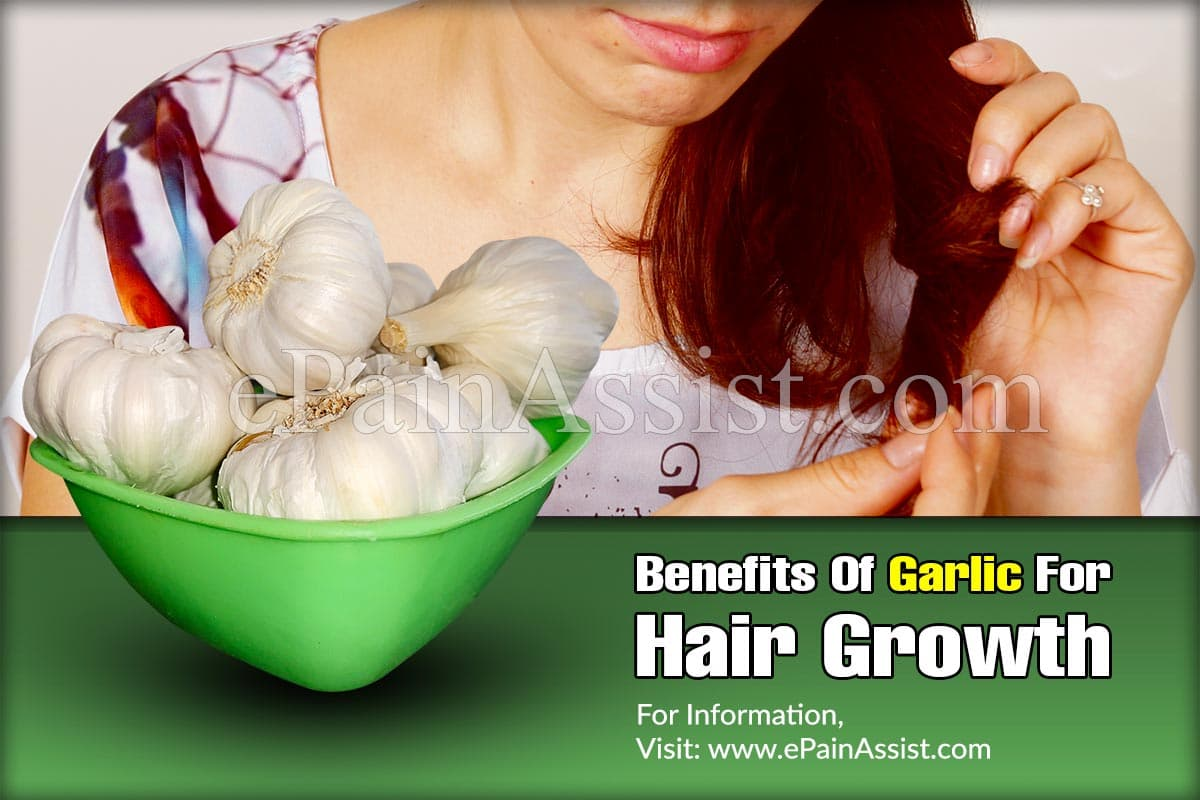 Benefits Of Garlic For Hair Growth & How To Use It?