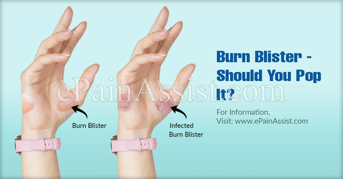 Burn Blister - Should You Pop It?