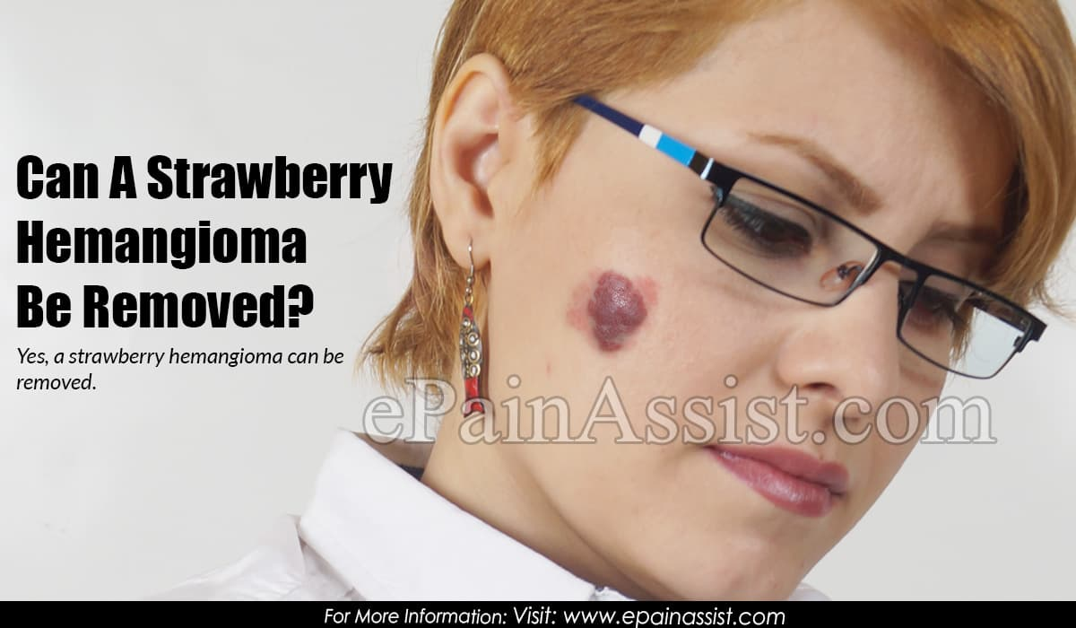 Can A Strawberry Hemangioma Be Removed?