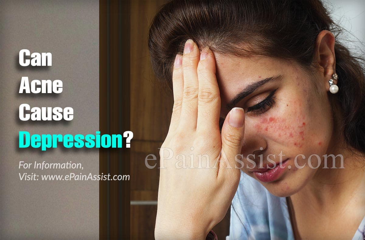 Can Acne Cause Depression?