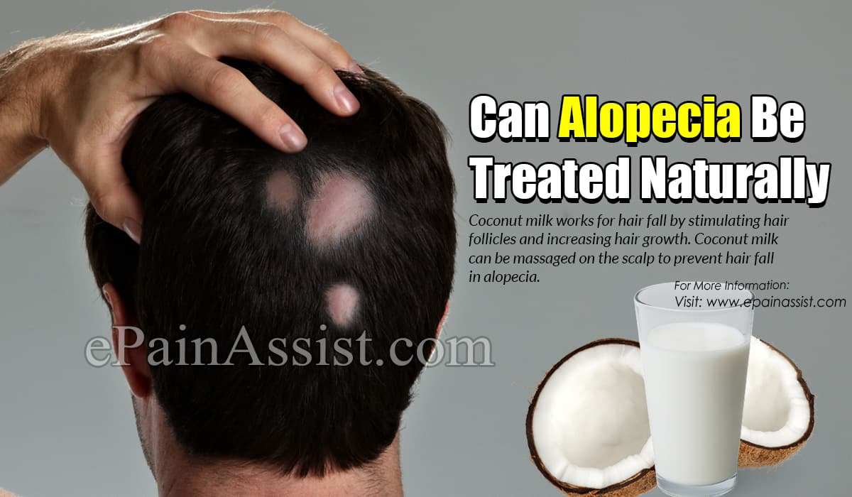 Can Alopecia Be Treated Naturally