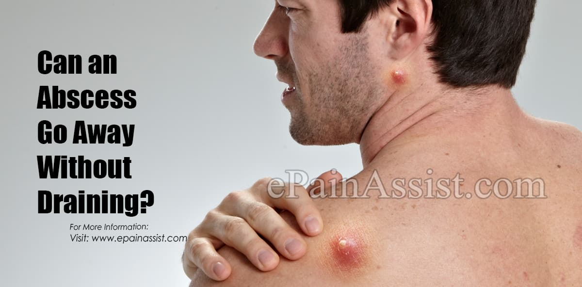 Can An Abscess Go Away Without Draining?