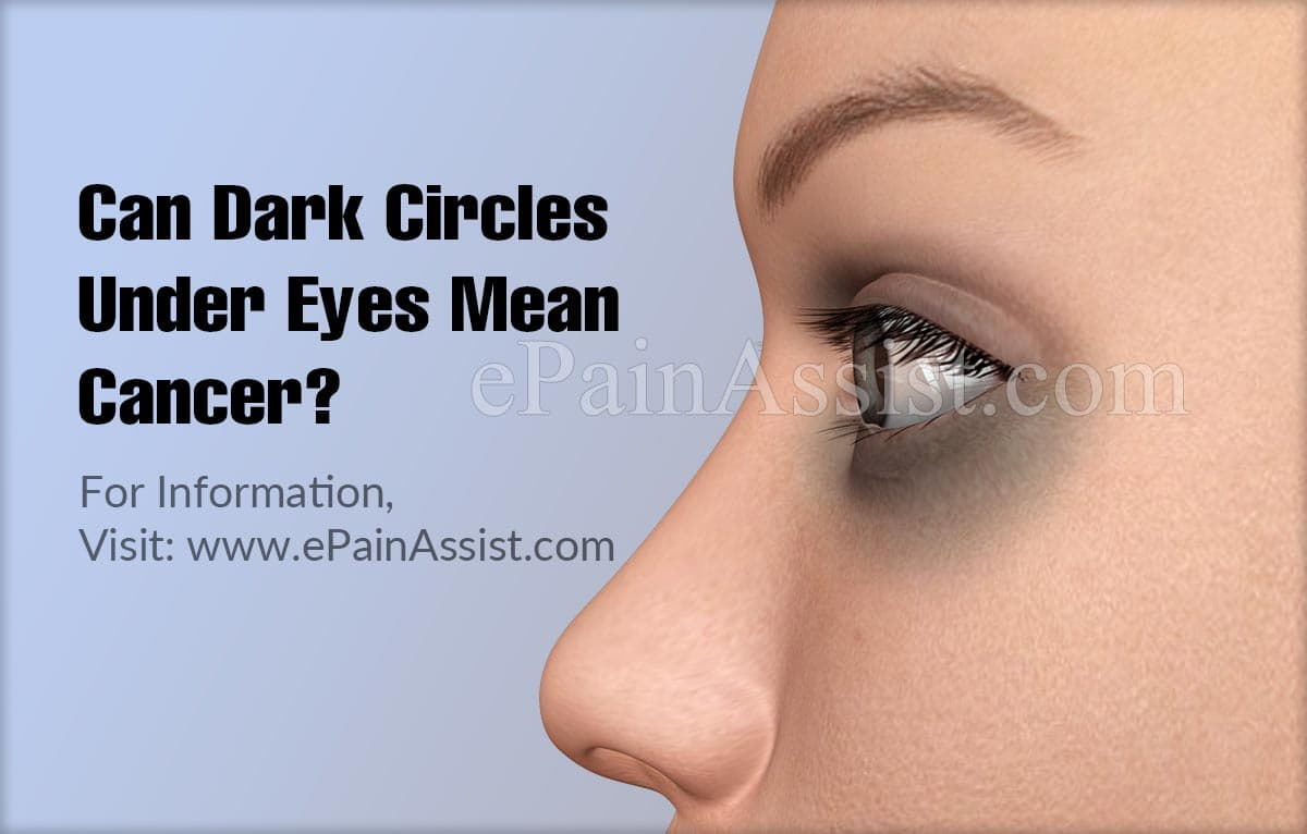 Can Dark Circles Under Eyes Mean Cancer?