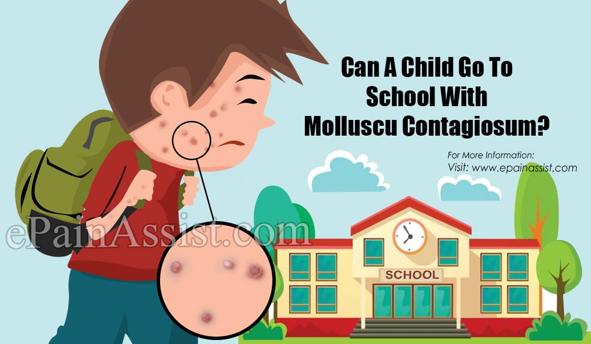 Can A Child Go To School With Molluscum Contagiosum?
