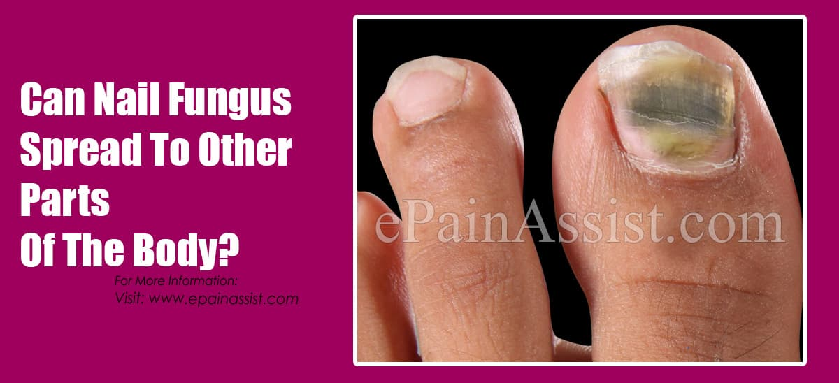Can Nail Fungus Spread To Other Parts Of The Body?