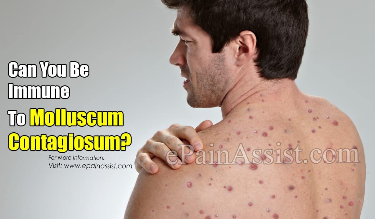 Can You Be Immune To Molluscum Contagiosum?