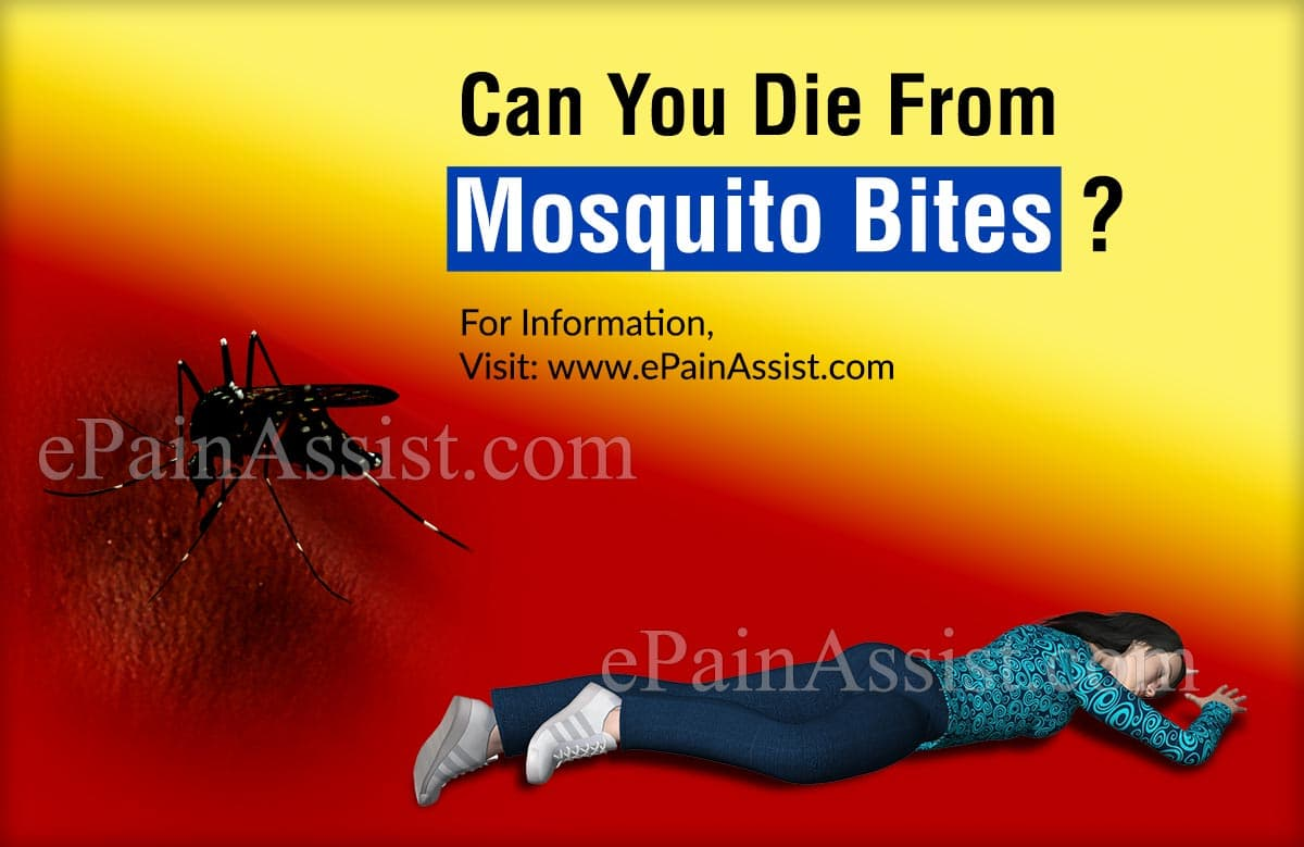 Can You Die From Mosquito Bites?