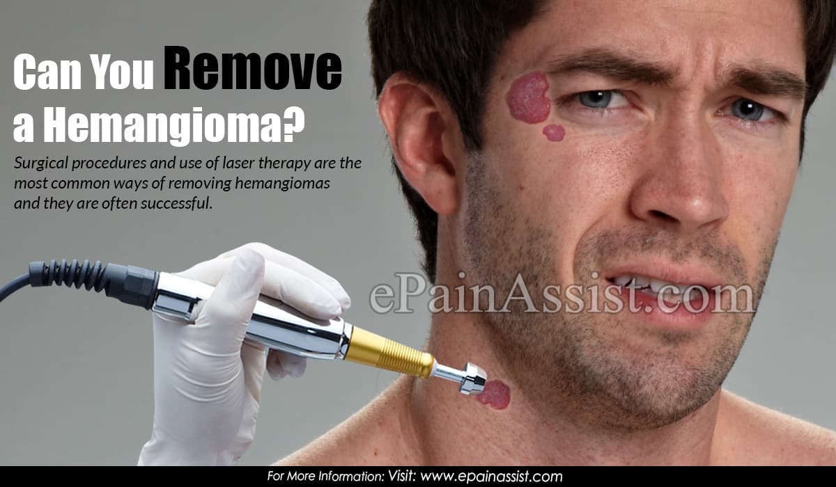 Can You Remove a Hemangioma?