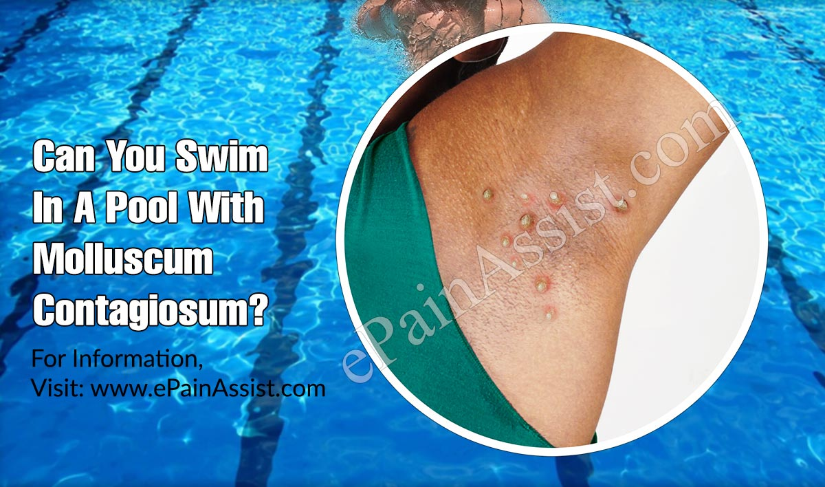 Can You Swim In A Pool With Molluscum Contagiosum?