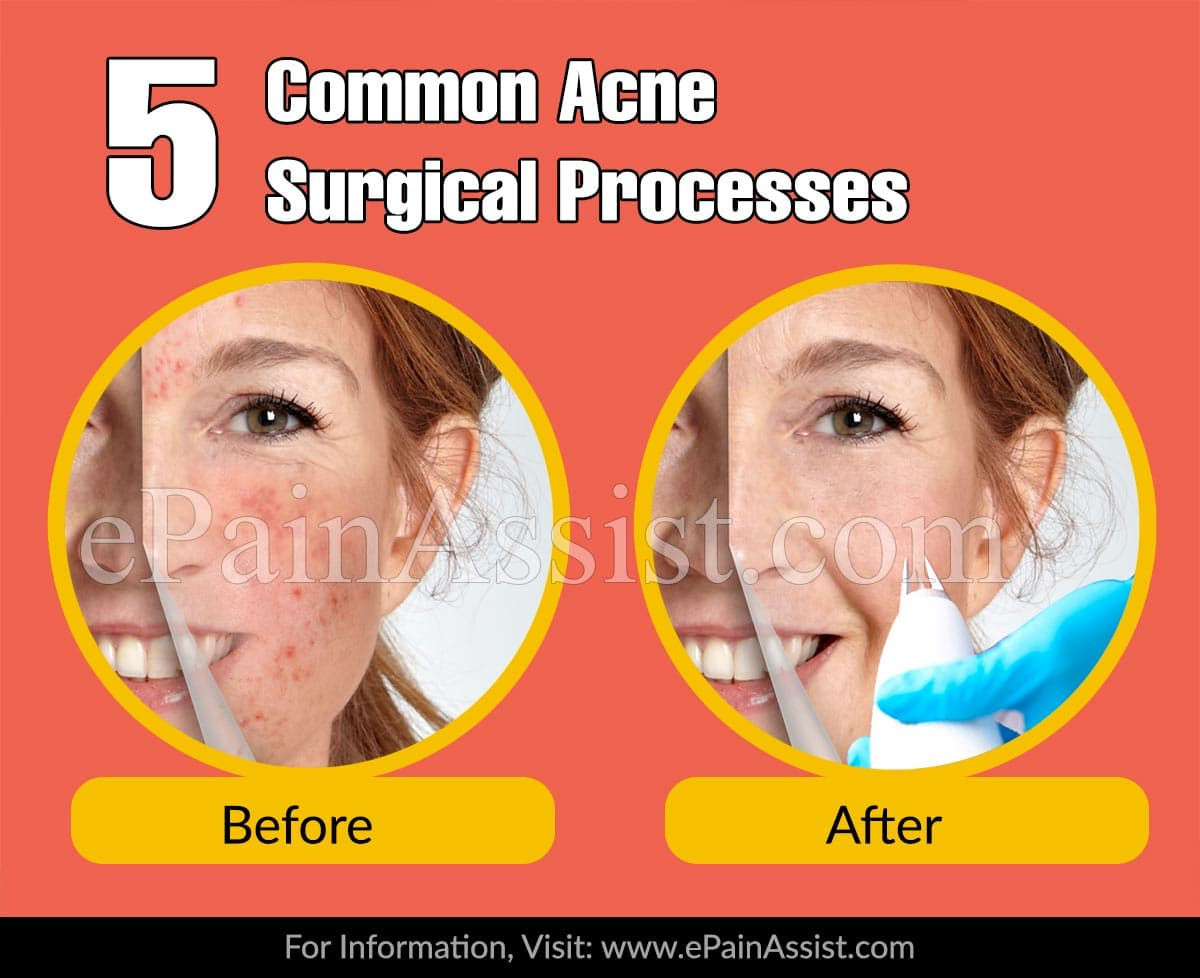 5 Common Acne Surgical Processes