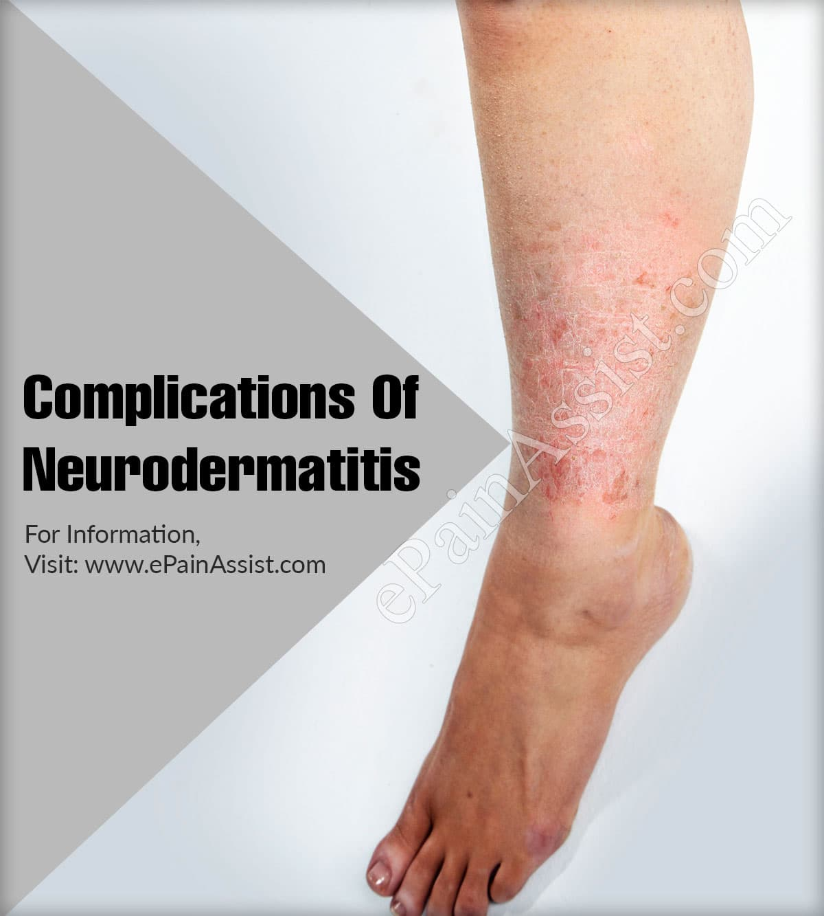 Complications Of Neurodermatitis