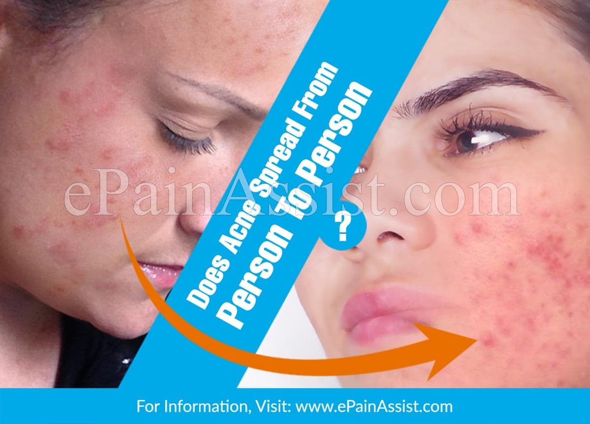 Does Acne Spread From Person To Person?