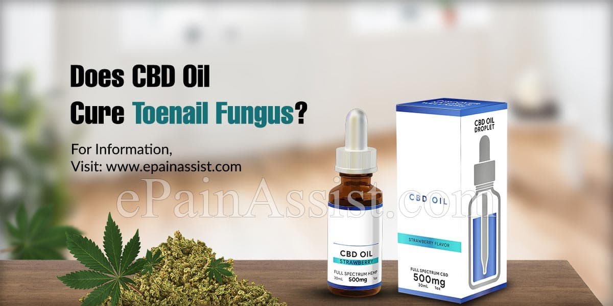Does CBD Oil Cure Toenail Fungus?