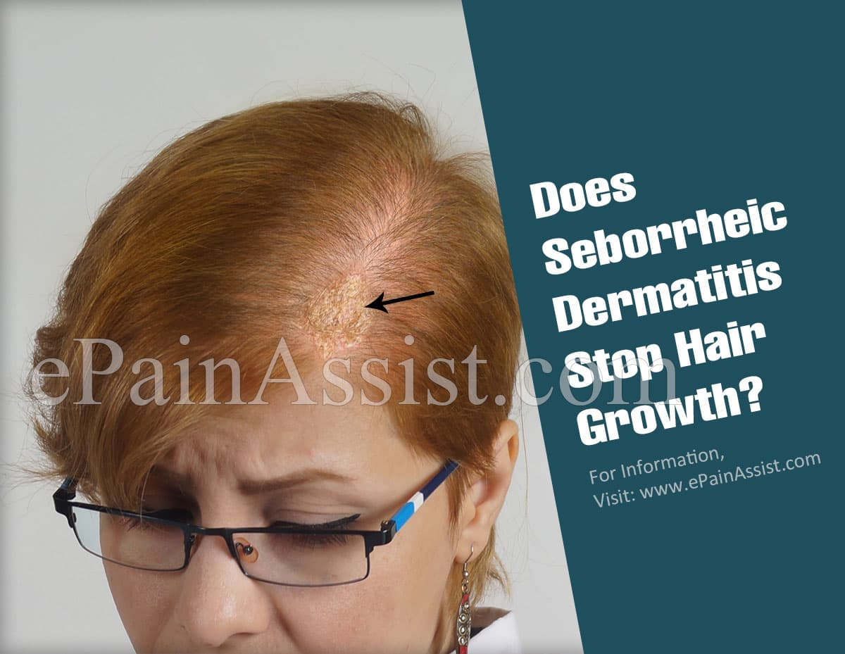 Does Seborrheic Dermatitis Stop Hair Growth?