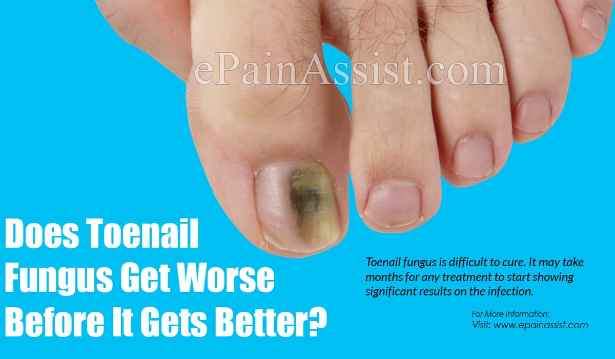 Does Toenail Fungus Get Worse Before It Gets Better?